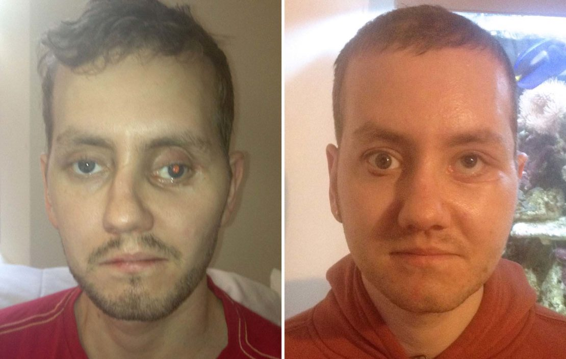 Before and after: after a motorbike crash, Stephen Power's skull was reconstructed with the help of 3D printing